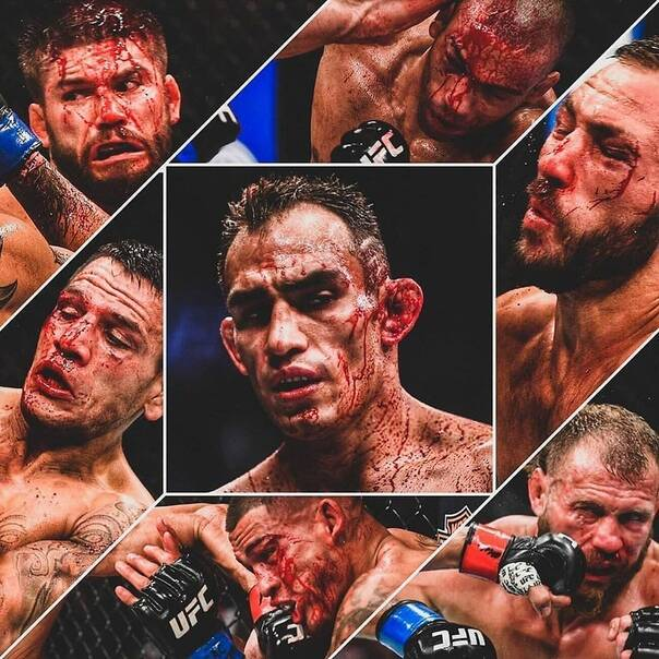Bloody faces of Tony Ferguson's opponents